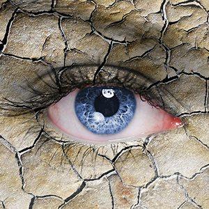 Zespół suchego oka - przyczyny, objawy, leczenie